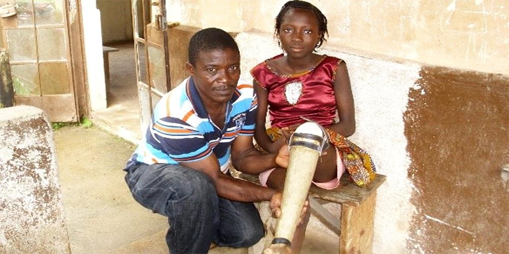 Lappia Amara, director of the Artificial Limb Clinic in Bo, Sierra Leone, fits a limb for Animato Kargbo.